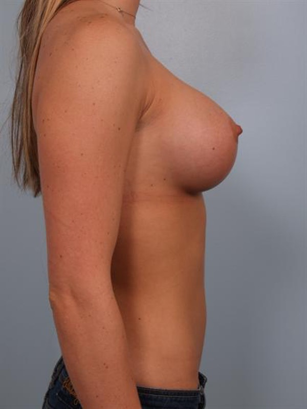 Breast Augmentation Gallery - Patient 1310885 - Image 6