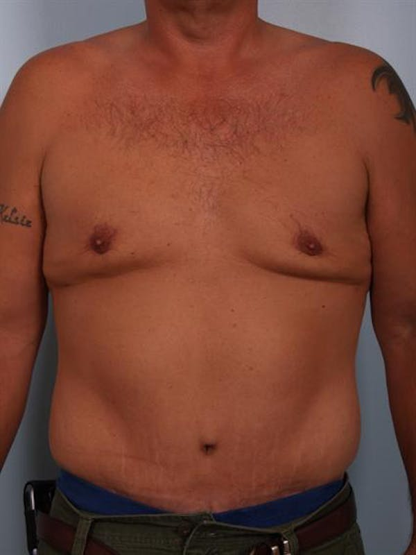 Male Liposuction Gallery - Patient 1310886 - Image 2