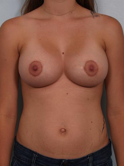 Breast Lift Gallery - Patient 1310889 - Image 2