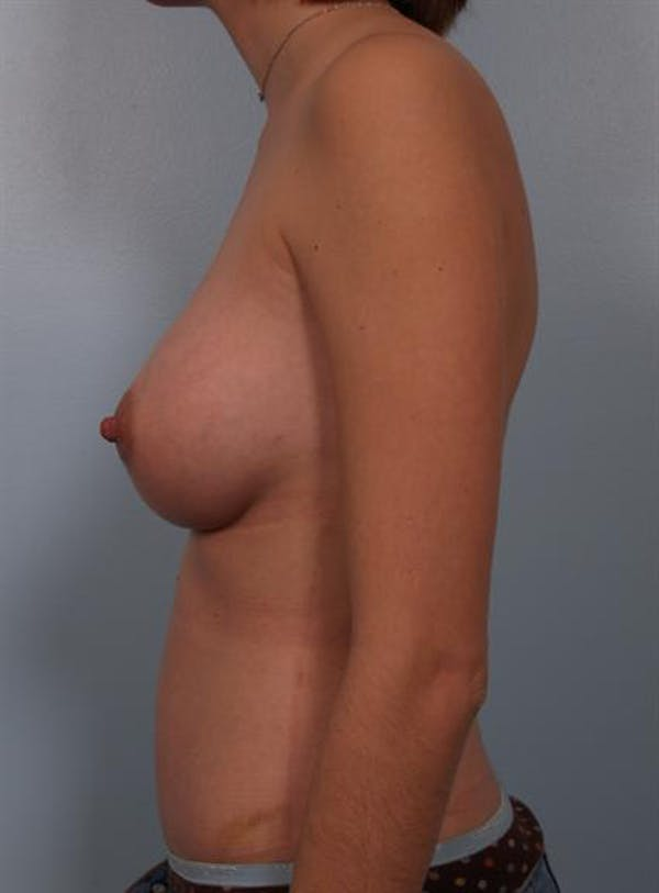 Mommy Makeover Gallery - Patient 1310887 - Image 4