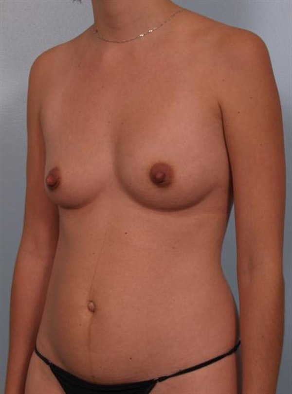 Mommy Makeover Gallery - Patient 1310887 - Image 5