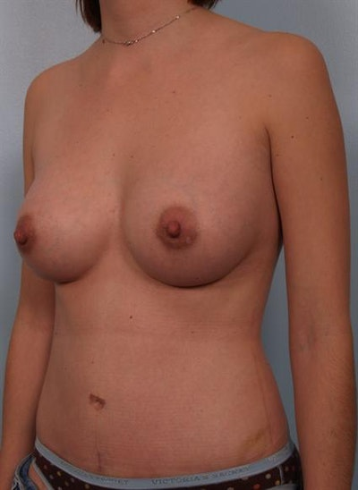 Mommy Makeover Gallery - Patient 1310887 - Image 6