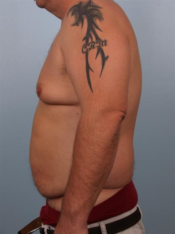 Male Liposuction Gallery - Patient 1310886 - Image 5