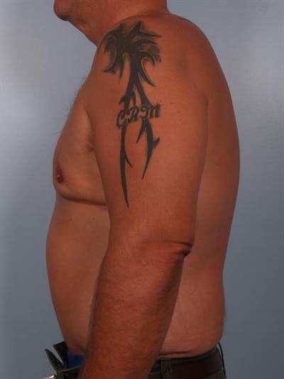 Male Liposuction Gallery - Patient 1310886 - Image 6