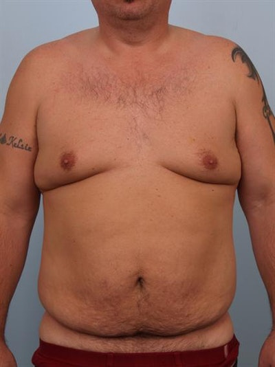 Male Tummy Tuck Gallery - Patient 1310891 - Image 1