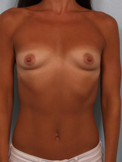 Breast Augmentation Gallery - Patient 1310894 - Image 1