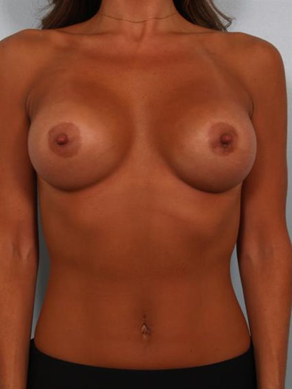 Breast Augmentation Gallery - Patient 1310894 - Image 2