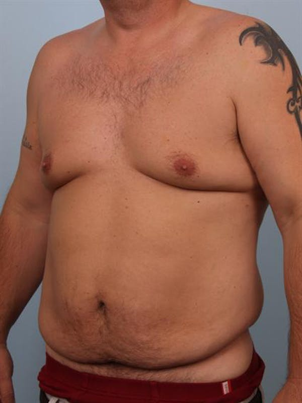 Male Tummy Tuck Gallery - Patient 1310891 - Image 3
