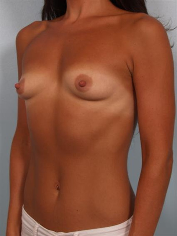 Breast Augmentation Gallery - Patient 1310894 - Image 3
