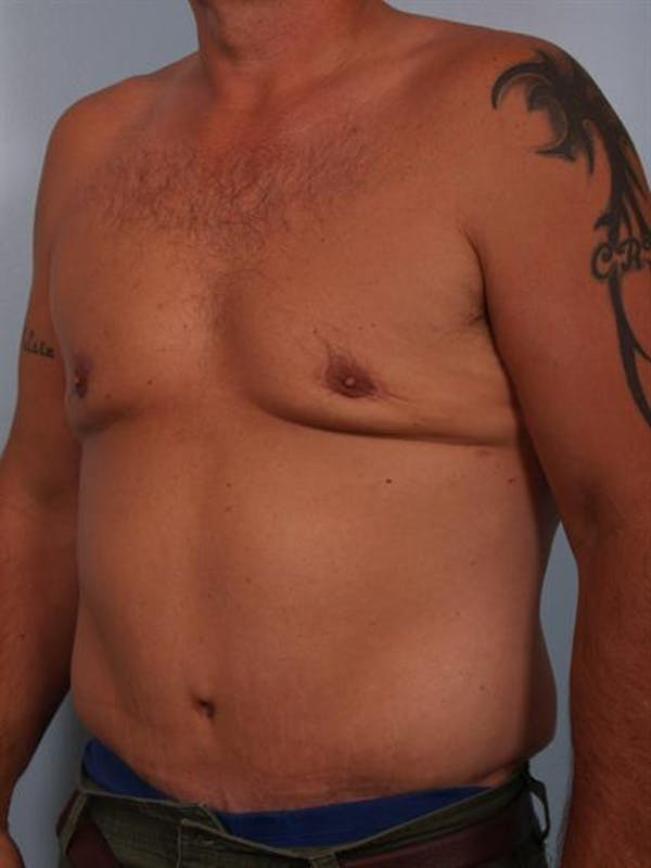 Male Tummy Tuck Gallery - Patient 1310891 - Image 4