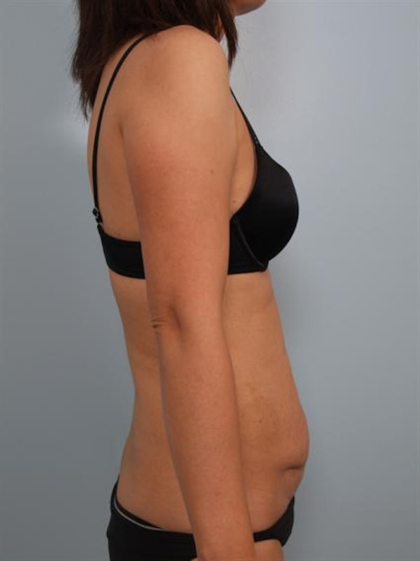 Power Assisted Liposuction Gallery - Patient 1310890 - Image 5