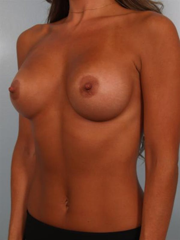Breast Augmentation Gallery - Patient 1310894 - Image 4