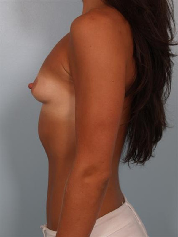 Breast Augmentation Gallery - Patient 1310894 - Image 5
