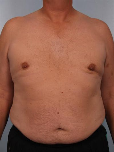 Male Liposuction Gallery - Patient 1310893 - Image 4