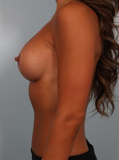 Breast Augmentation Gallery - Patient 1310894 - Image 6