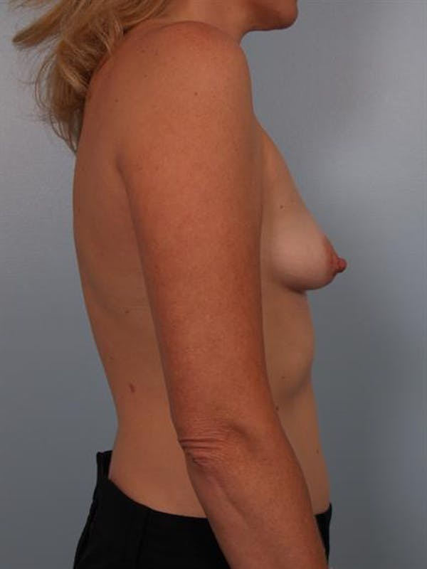 Breast Lift Gallery - Patient 1310897 - Image 3