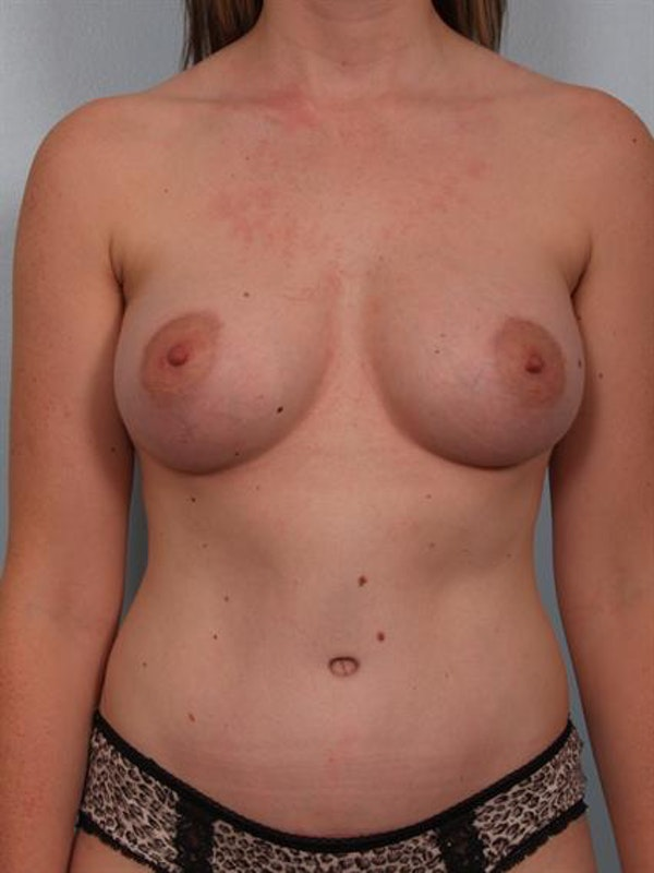 Tummy Tuck Gallery - Patient 1310896 - Image 2