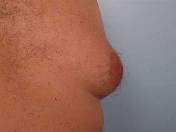 Male Liposuction Gallery - Patient 1310893 - Image 5