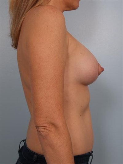 Breast Lift Gallery - Patient 1310897 - Image 4
