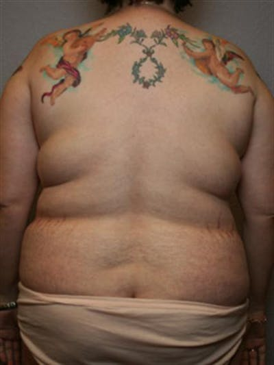 Power Assisted Liposuction Gallery - Patient 1310895 - Image 1