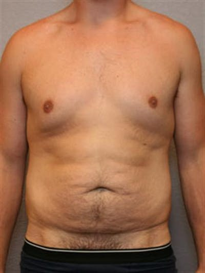 Male Tummy Tuck Gallery - Patient 1310898 - Image 1