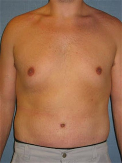 Male Tummy Tuck Gallery - Patient 1310898 - Image 2
