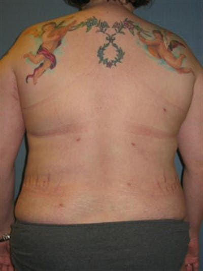 Power Assisted Liposuction Gallery - Patient 1310895 - Image 2