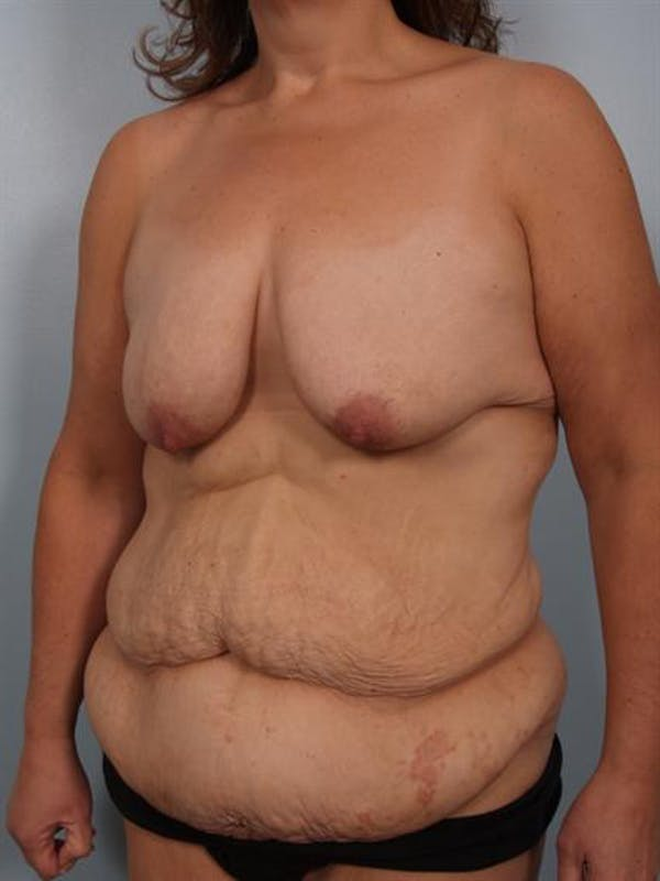 Mommy Makeover Gallery - Patient 1310899 - Image 3