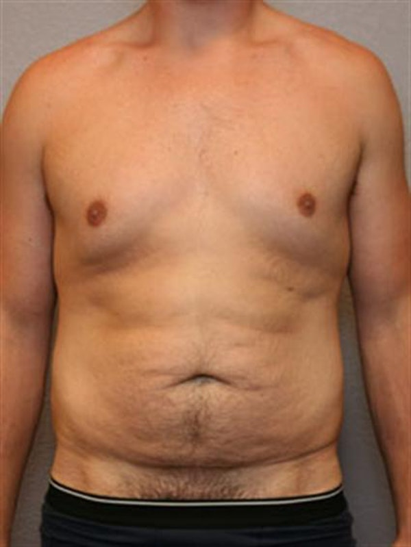 Male Liposuction Gallery - Patient 1310900 - Image 1