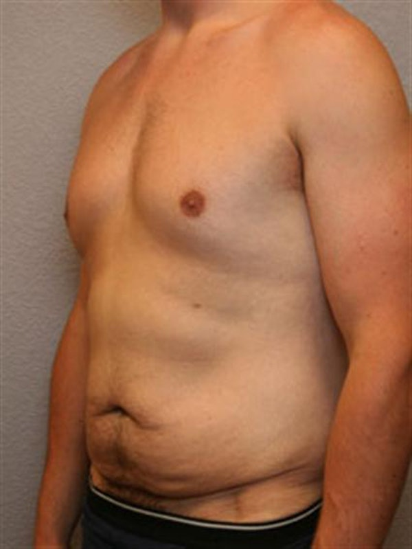 Male Tummy Tuck Gallery - Patient 1310898 - Image 3