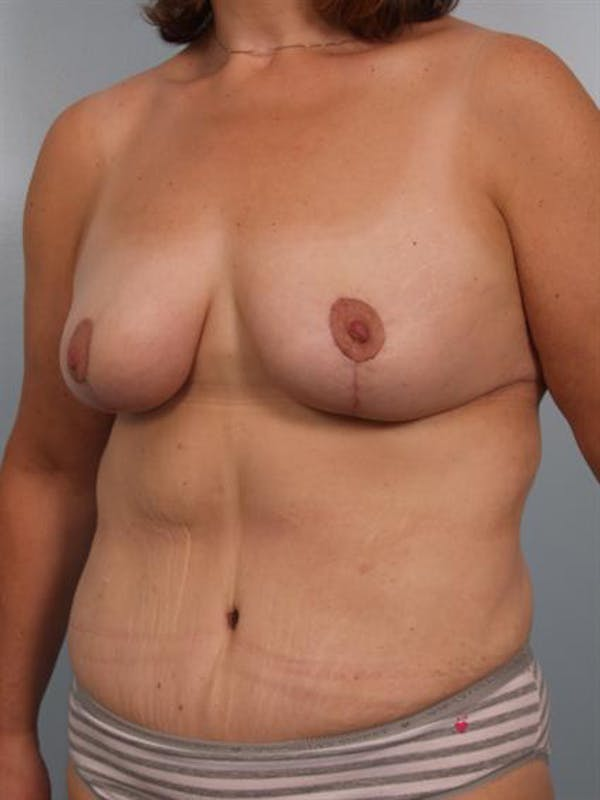 Mommy Makeover Gallery - Patient 1310899 - Image 4