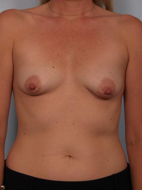 Breast Lift Gallery - Patient 1310897 - Image 1