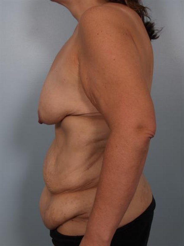 Mommy Makeover Gallery - Patient 1310899 - Image 5