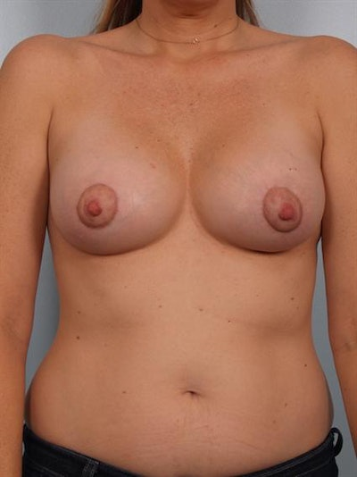 Breast Lift Gallery - Patient 1310897 - Image 2