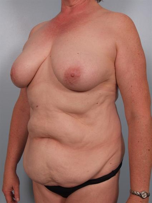 Tummy Tuck Gallery - Patient 1310902 - Image 1