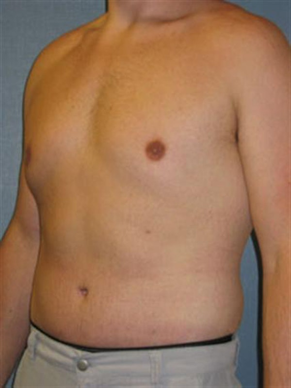 Male Liposuction Gallery - Patient 1310900 - Image 4