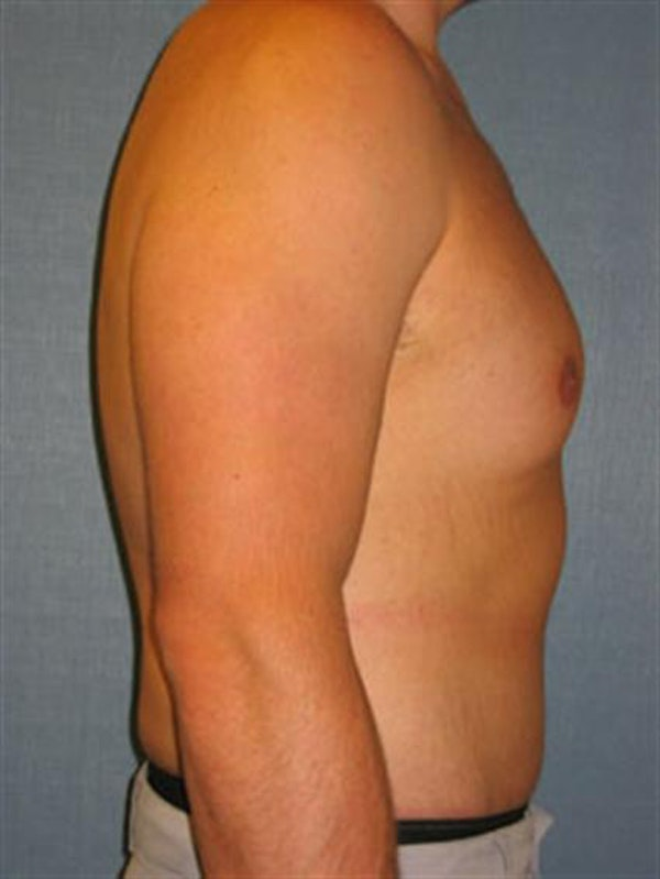 Male Tummy Tuck Gallery - Patient 1310898 - Image 6