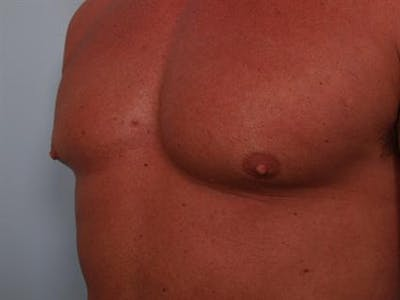 Male Breast/Areola Reduction Gallery - Patient 1310907 - Image 1