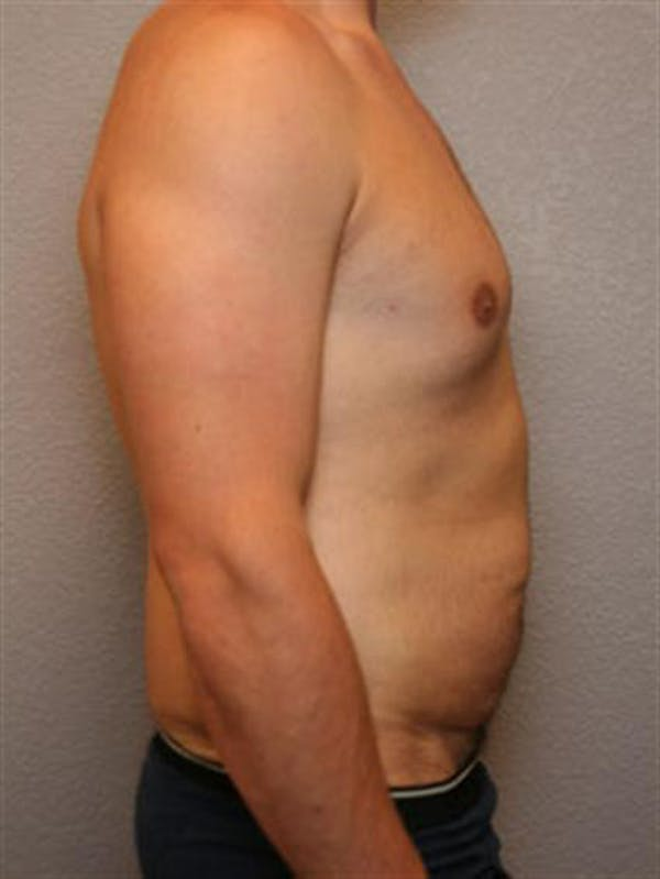Male Liposuction Gallery - Patient 1310900 - Image 5