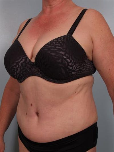 Tummy Tuck Gallery - Patient 1310902 - Image 2