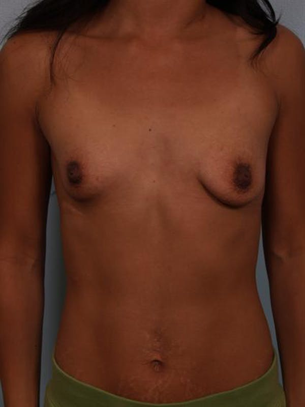 Breast Lift Gallery - Patient 1310905 - Image 1