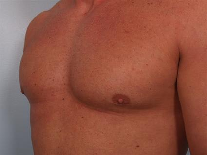 Male Breast/Areola Reduction Gallery - Patient 1310907 - Image 2