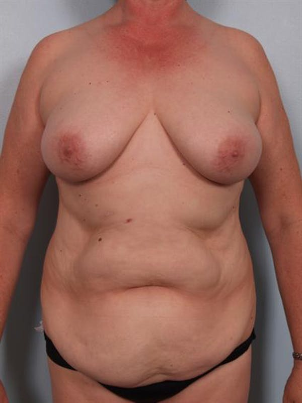 Tummy Tuck Gallery - Patient 1310902 - Image 3