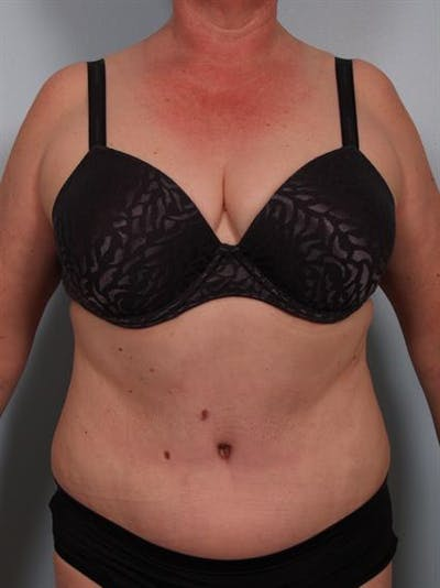 Tummy Tuck Gallery - Patient 1310902 - Image 4