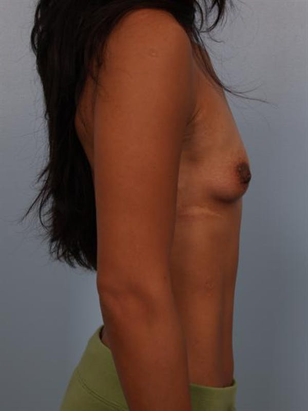 Breast Lift Gallery - Patient 1310905 - Image 3