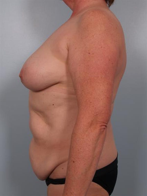 Tummy Tuck Gallery - Patient 1310902 - Image 5