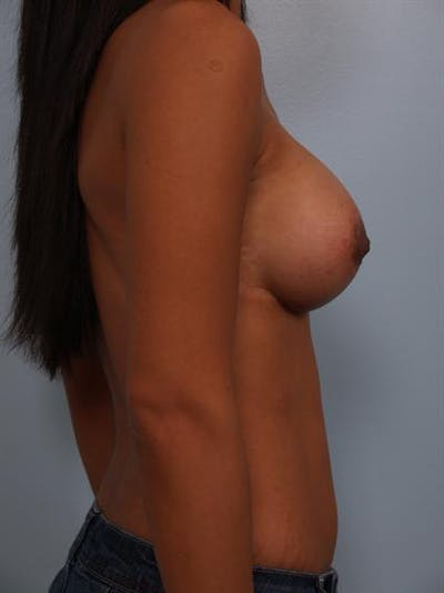 Breast Lift Gallery - Patient 1310905 - Image 4