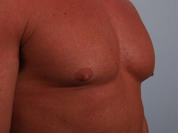 Male Breast/Areola Reduction Gallery - Patient 1310907 - Image 5