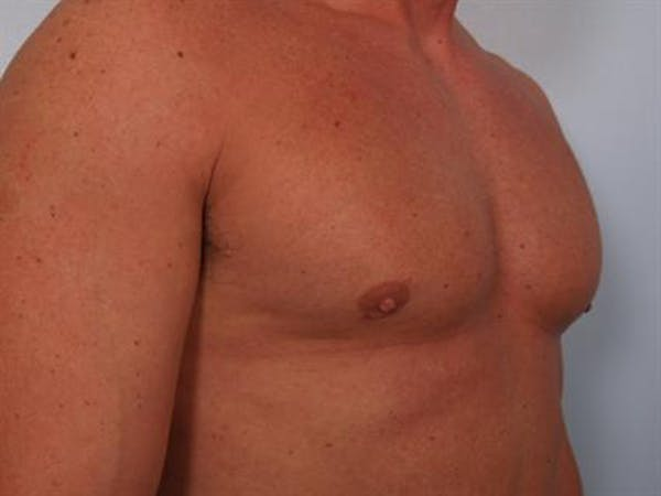 Male Breast/Areola Reduction Gallery - Patient 1310907 - Image 6