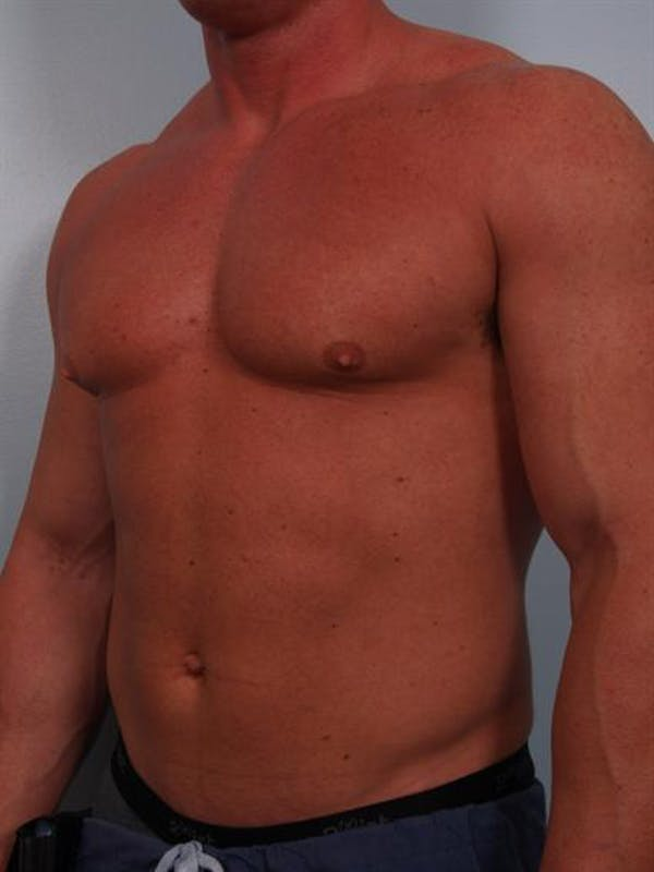 Male Breast/Areola Reduction Gallery - Patient 1310907 - Image 7